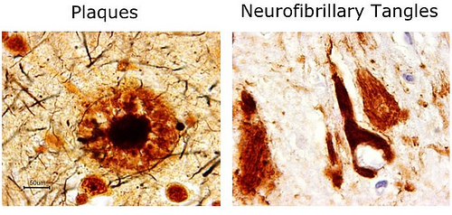 Image result for beta amyloid plaque
