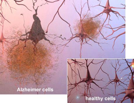 Beta-amyloid | Dementia SOS