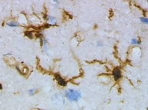 Microscopic view of microglia cells.  Photo by Grzegorz Wicher.
